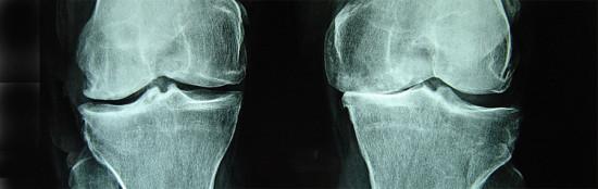 Osteo-Knees